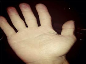 资讯生活双手断掌纹的男人