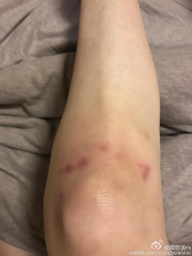 周丽淇膝盖伤痕